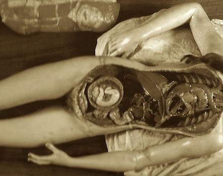 Clemente Susini, Statua di giovane donna giaciente